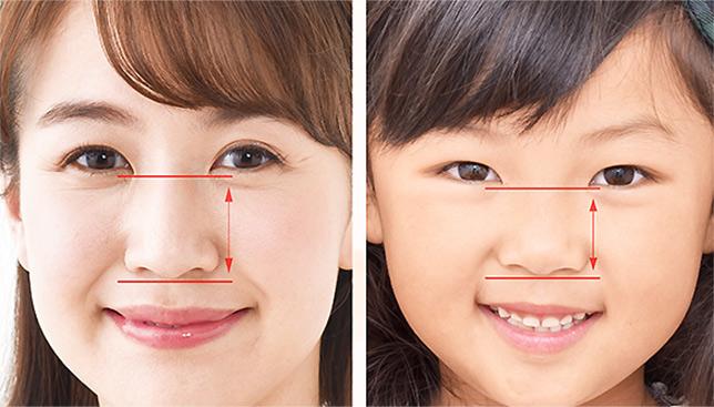 子どもは目と鼻の位置が近い