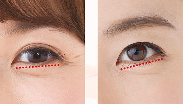 目の形を注意